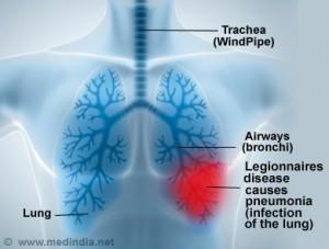 Legionnaires' disease infographic.
